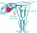 Lý thuyết bài thụ tinh, thụ thai và phát triển của thai