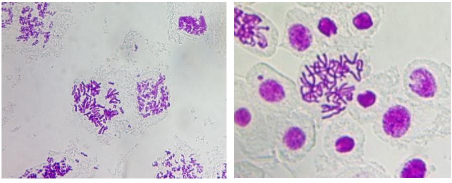 Bài 7: Thực hành Quan sát các dạng đột biến sgk Sinh 12 | Để học tốt Sinh 12